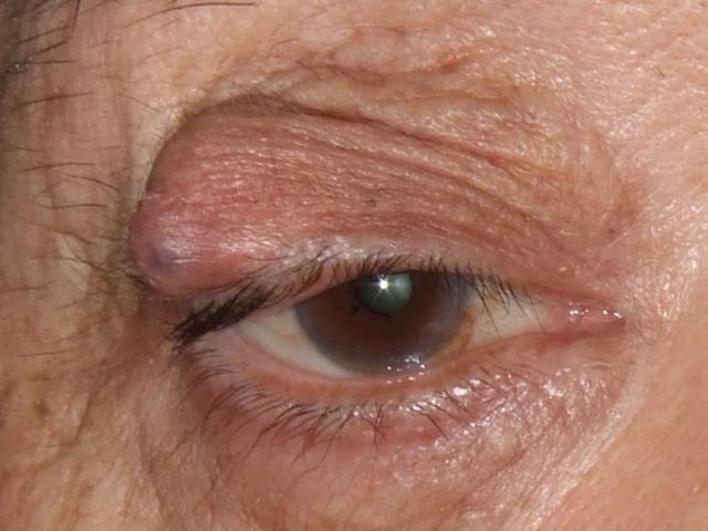 部分麻酔(局所麻酔剤の注射)にて皮膚側、またはまぶたの裏側から切開して、たまったあぶらをかき出します。