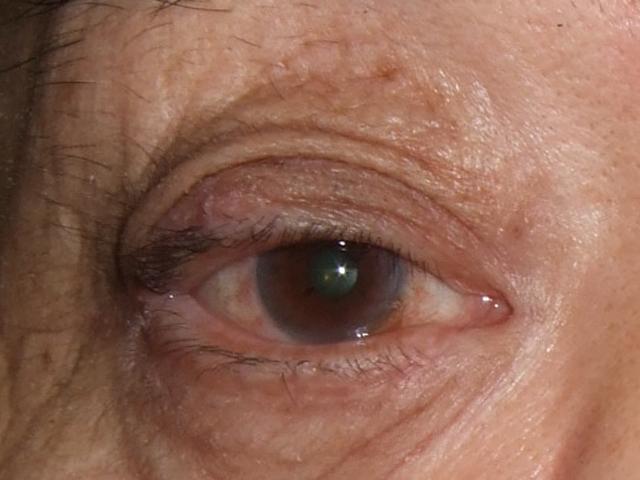 眼瞼の腫瘍