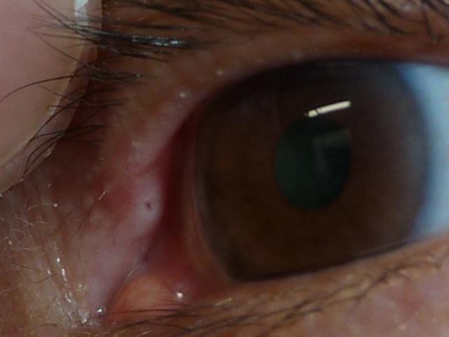 目 の ふち に 白い でき もの