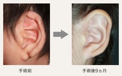 人 シワ 耳たぶ ある に が 脳梗塞を起こしやすい人に、耳のシワがある人