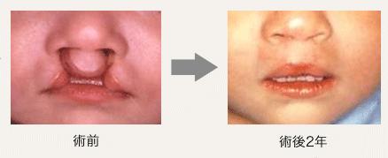 両側 完全 口唇 口蓋 顎 裂